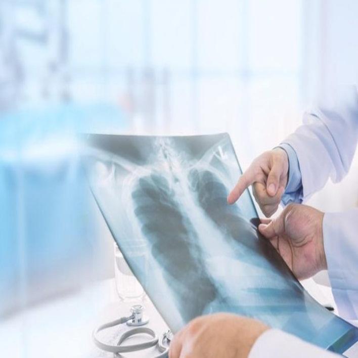 akciger-nakli-ameliyati-riskleri-nelerdir