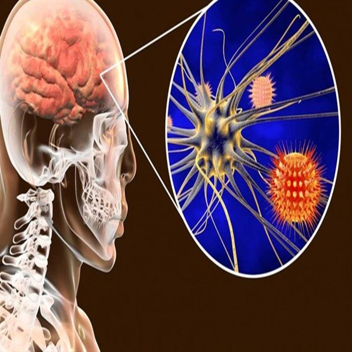akut-bakteriyel-menenjit-komplikasyonlari-nelerdir
