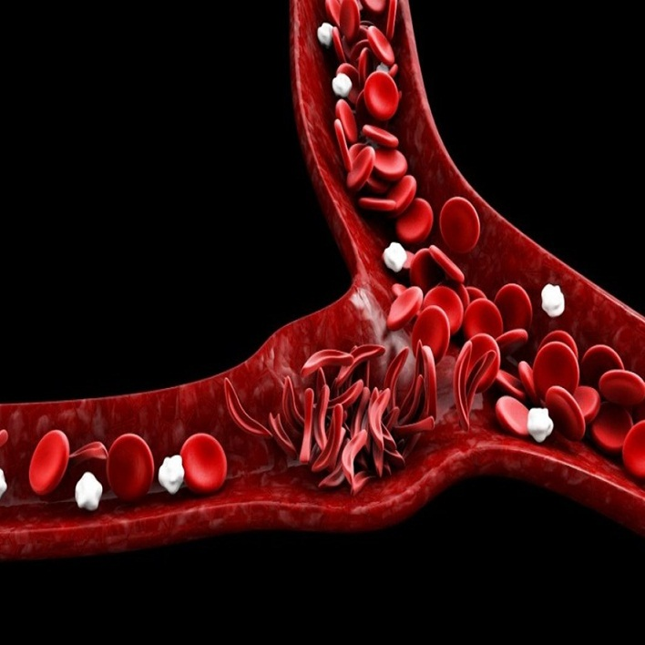 anemi-risk-faktorleri-nelerdir