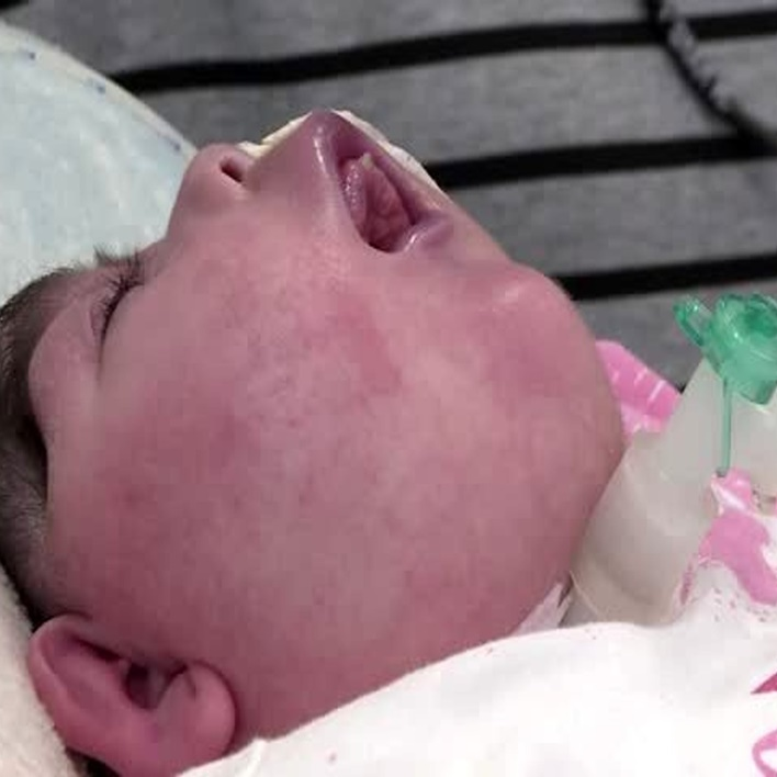 anensefali-bebek-anneye-zarar-verir-mi