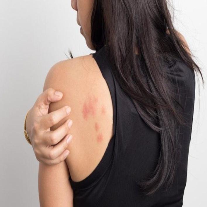 atopik-dermatit
