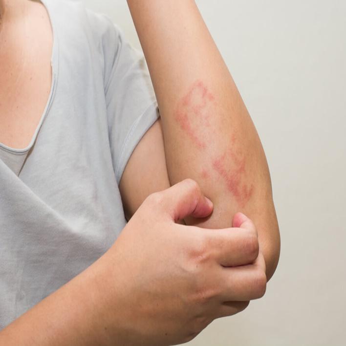 bebeklerde-ceviz-alerjisi-nasil-gecer