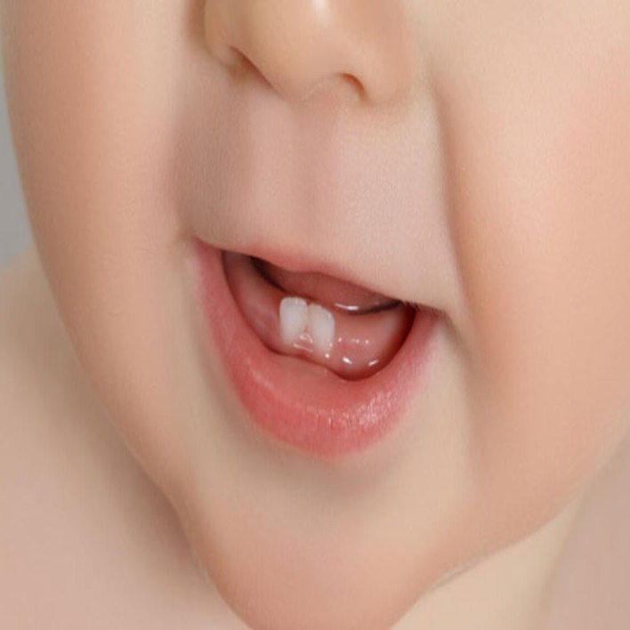 bebeklerde-dis-cikarma