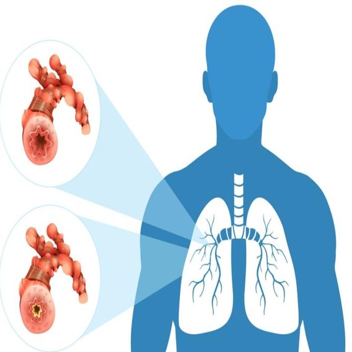bronkospazm-nasil-tedavi-edilir