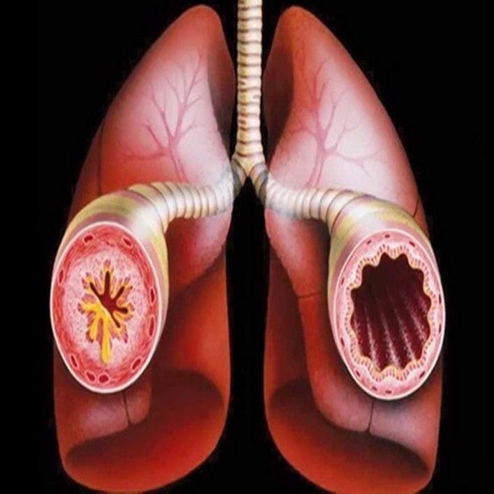 bronkospazm-nedenleri-nelerdir