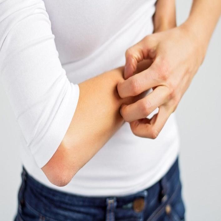 ceviz-alerjisi-neden-olur
