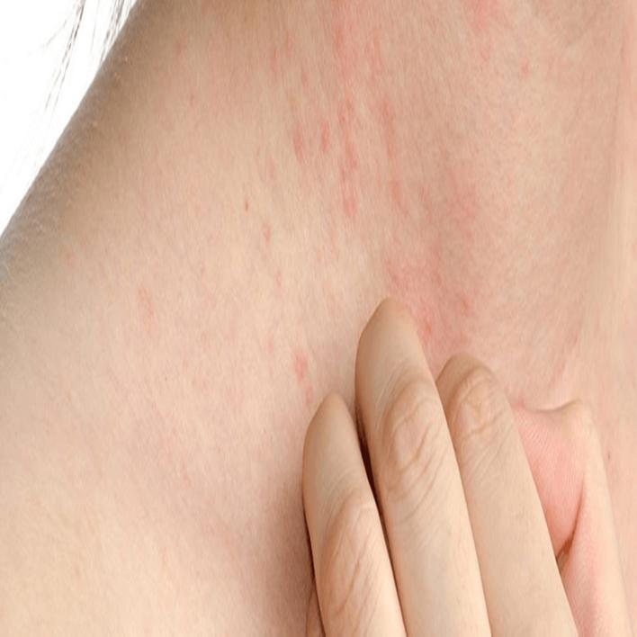 fistik-alerjisi-belirtileri-nelerdir