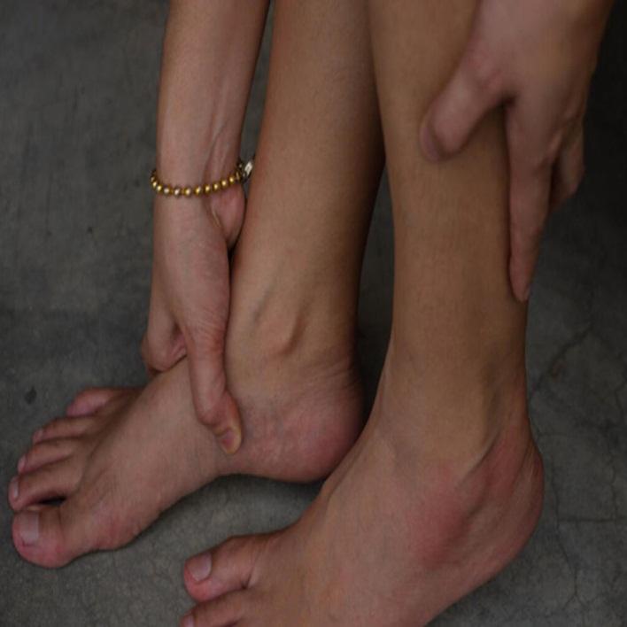 gebelikte-ayak-sismesi