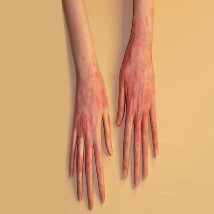 lateks-alerjisi-tedavisi-nasildir