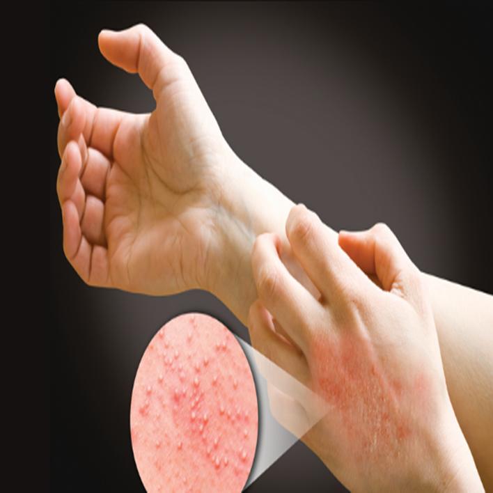 lateks-alerjisi
