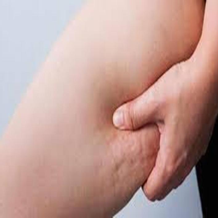 lenfanjit-nasil-tedavi-edilir