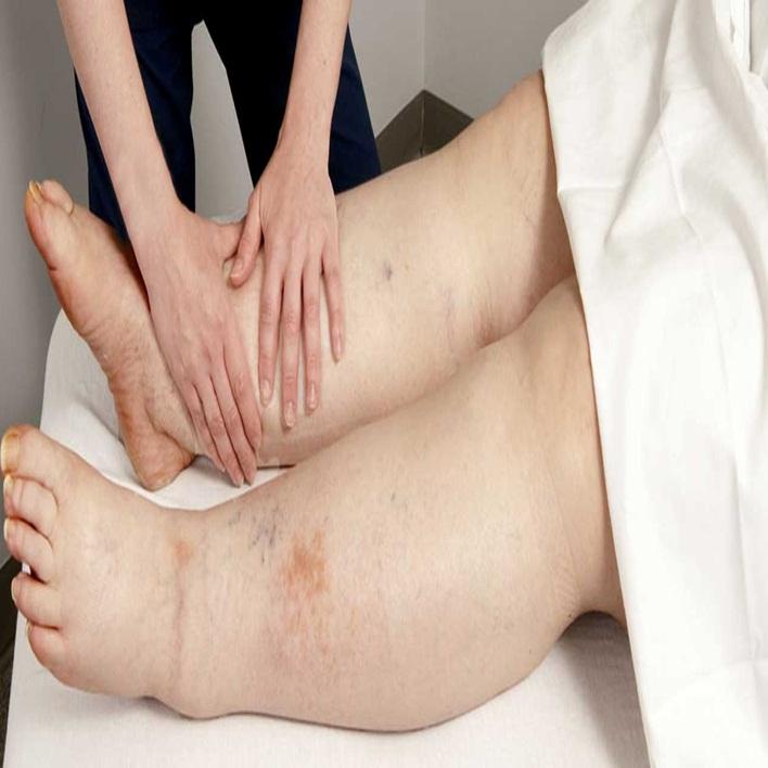 lenfodem-kanser-midir