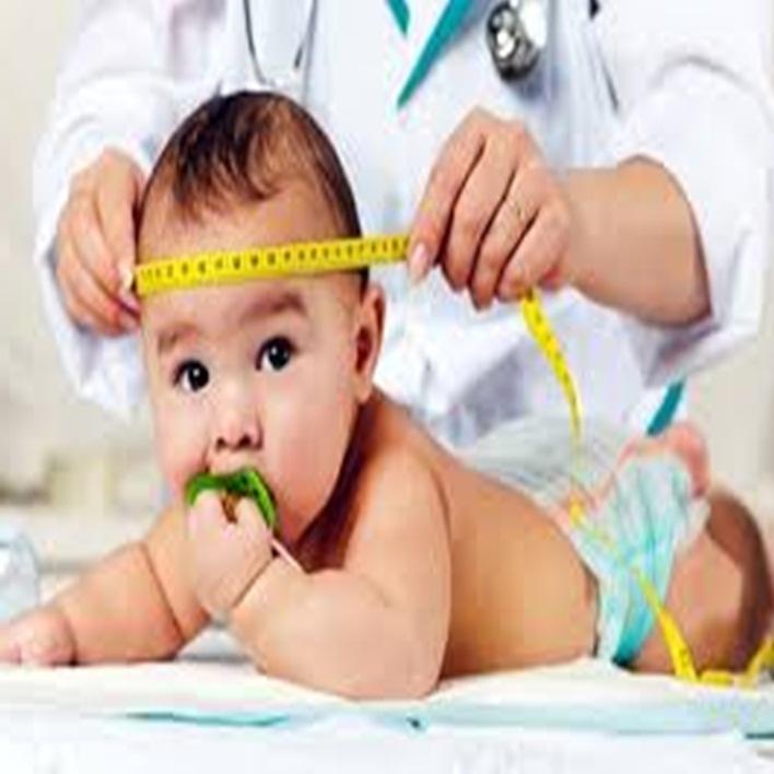 mikrosefali-bebekler-ne-kadar-yasar