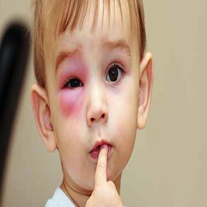 nefrotik-sendrom-belirtileri-nelerdir