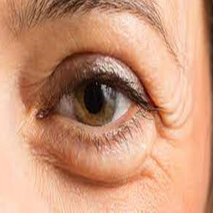 nistagmus-nedenleri-nelerdir
