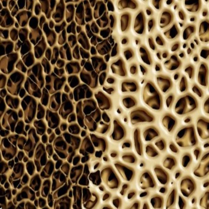 osteopeni-agri-yapar-mi