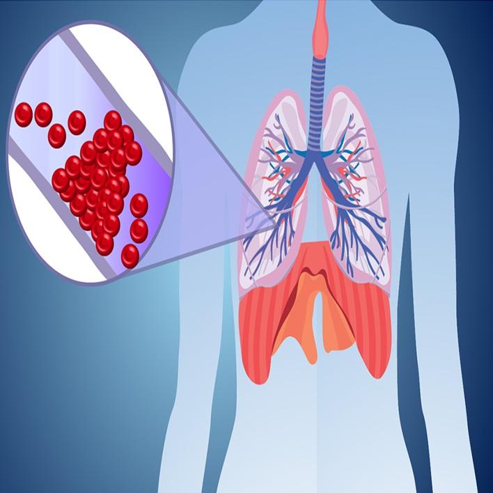 pulmoner-emboli