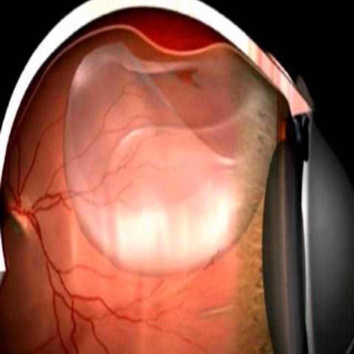 retina-yirtilmasi-agri-yapar-mi