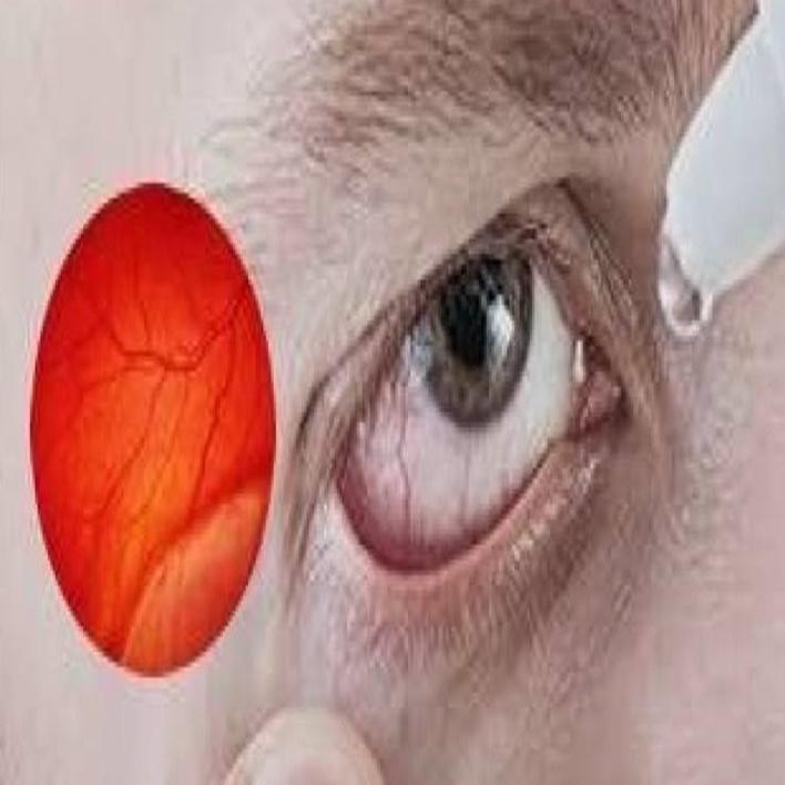 retina-yirtilmasi-belirtileri-nelerdir