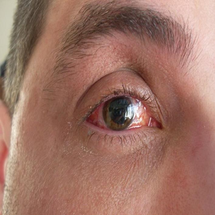 retina-yirtilmasi-iyilesir-mi
