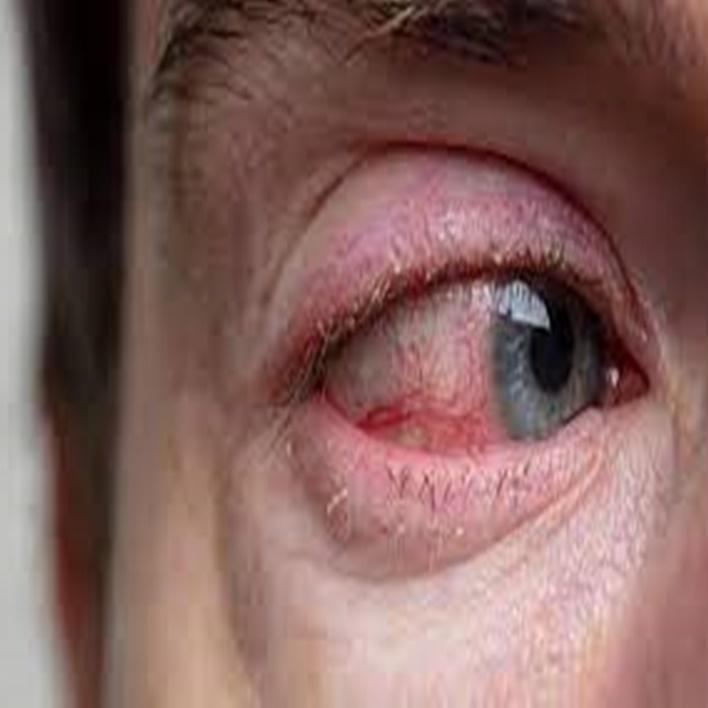 retina-yirtilmasi-nasil-tedavi-edilir