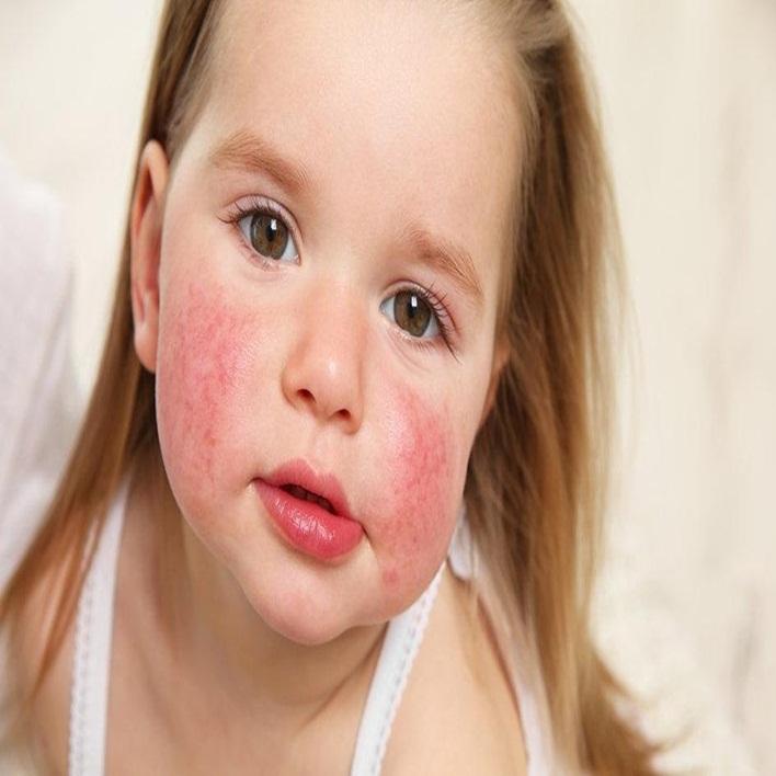 susam-alerjisi-neden-olur